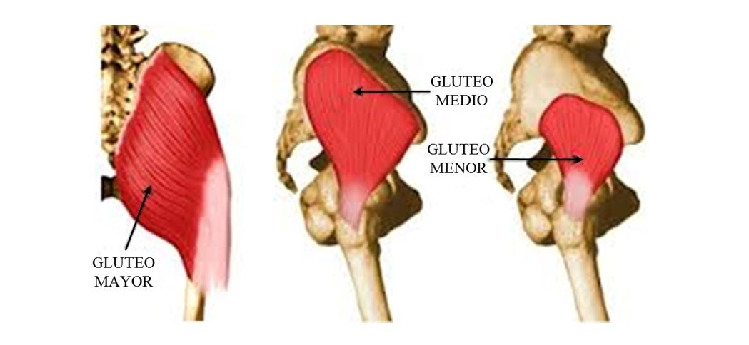Osteomas SINDROME DEL TRASERO MUERTO O AMNESIA GLUTEA